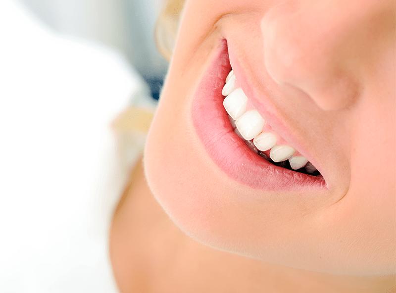 Como Clarear os dentes: Sete Dicas infalíveis