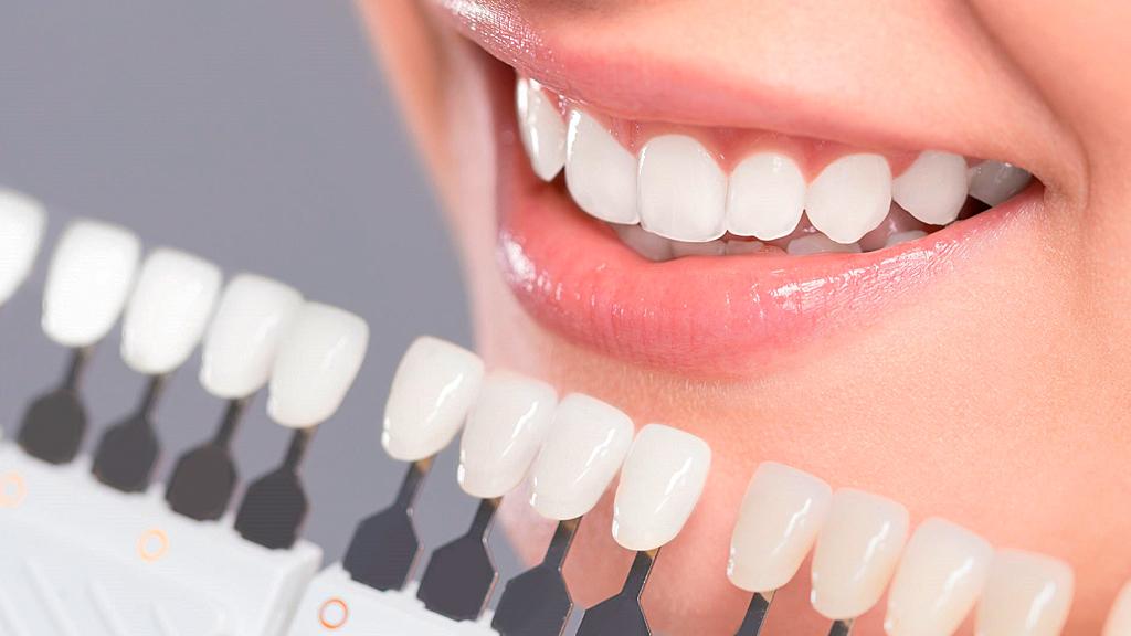 dentista em Curitiba especializado em lentes de contato dental?